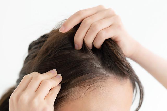 薄毛予防&美髪効果